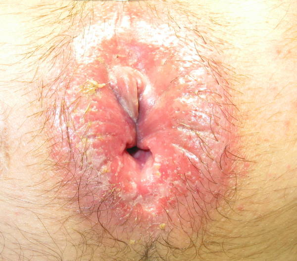 Anal eczema and fissure