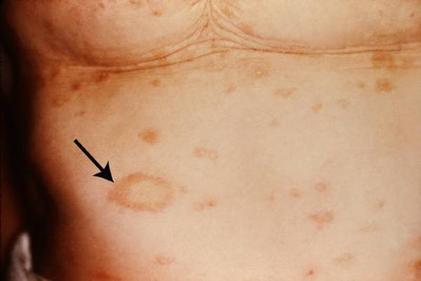 pictures of pityriasis rosea #11
