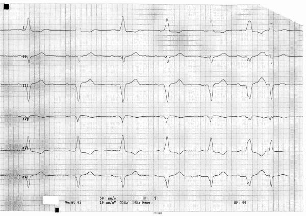 ECG: premature ventriculare contraction (PVC), left bundle branch block