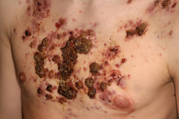 steroid acne treatment face