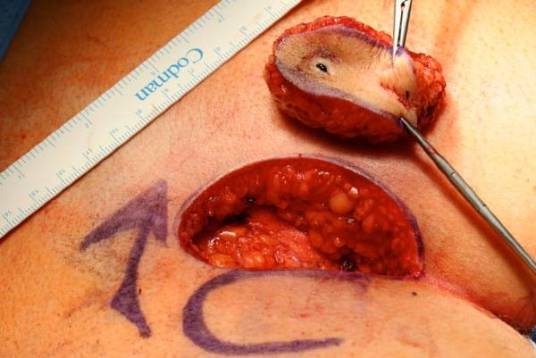 Excision biopsy of skin lesions | DermNet New Zealand