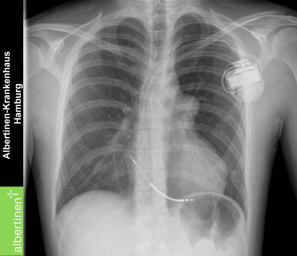 A icd pacemaker x ray doccheck pictures for Chambre implantable