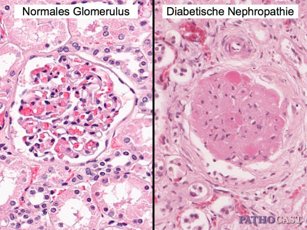 diabetic nephropathy in type ii diabetes essay Of this study is to determine the relation between type 2 diabetes mellitus and its complication - diabetic nephropathy the study also tries to find the correlation between duration of diabetes mellitus and diabetic.