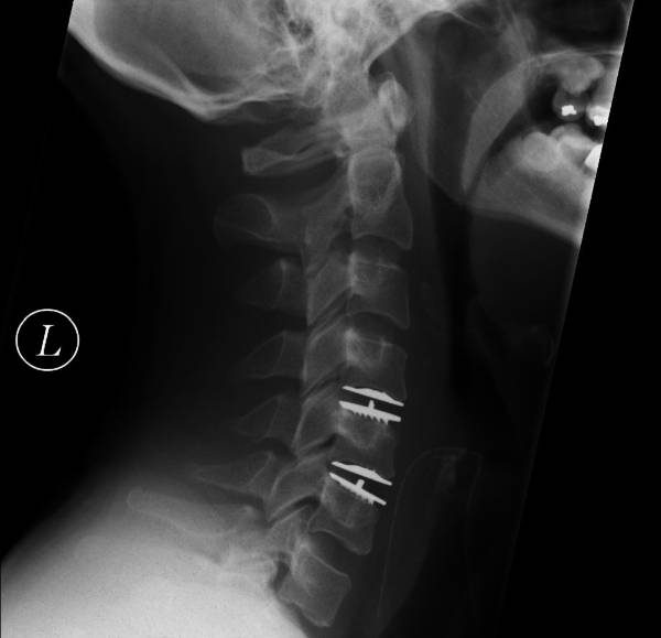 what is retrolisthesis of c4 on c5 This patient came in with labored breathing and quite acute lower back pain he had taken an mri and was advised for surgery of his l5 we corrected the retrolisthesis of the 2nd lumbar as to not further disturb the 3rd lumbar.