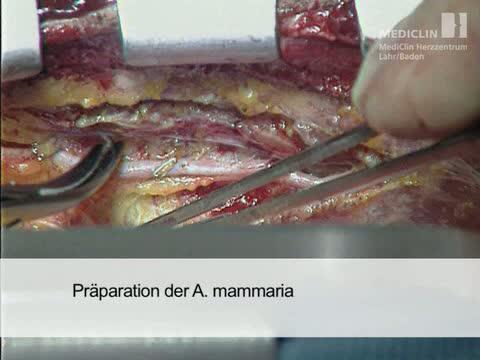 Arteria thoracica interna - DocCheck Flexikon