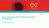 Piece Meal EMR eines Lateral Spreading Tumors LST