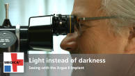Light instead of darkness – Seeing with the Argus II Implant