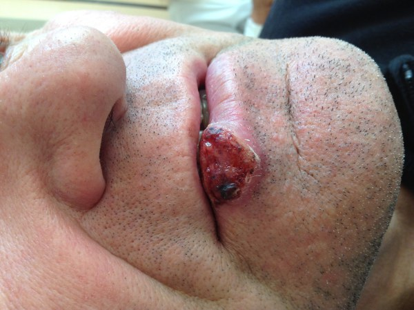Squamous cell carcinoma of the lip