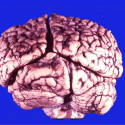 Occipital lobe below the tentorium