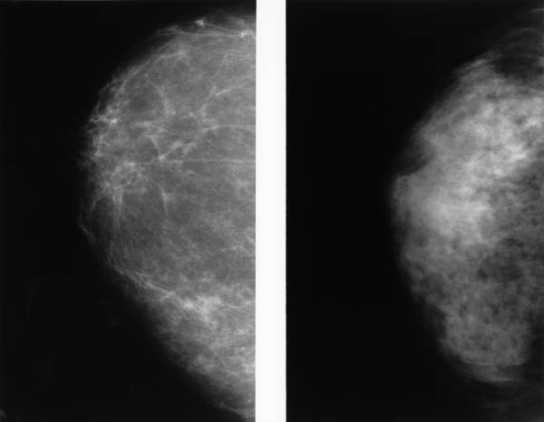 Check Abnormal Results From A Mammogram
