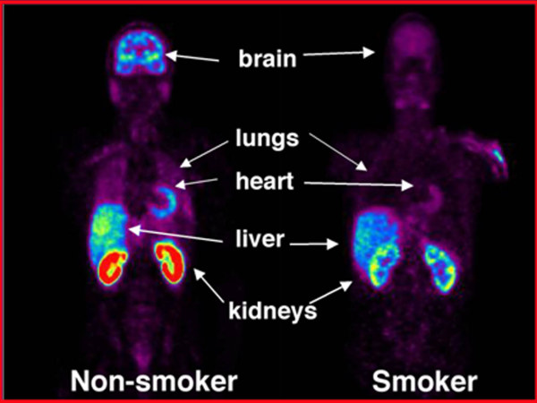 Imaging Study Reveals Effect of Smoking on Peripheral Organs
