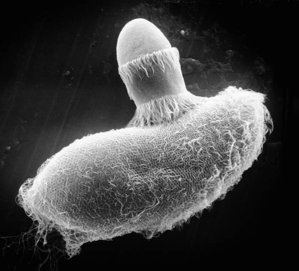 Paramecium sp. (Cell surface) - CIL:39250