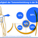 Frequency of tumor devolopment in the breast