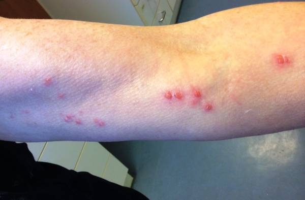 Exanthem linker Arm - Herpes zoster - DocCheck Pictures