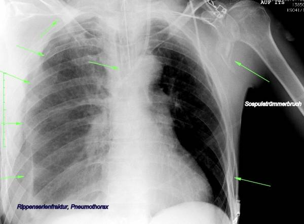 Serial rib fracture - Pneumothorax - Comminuted fracture of scapula left