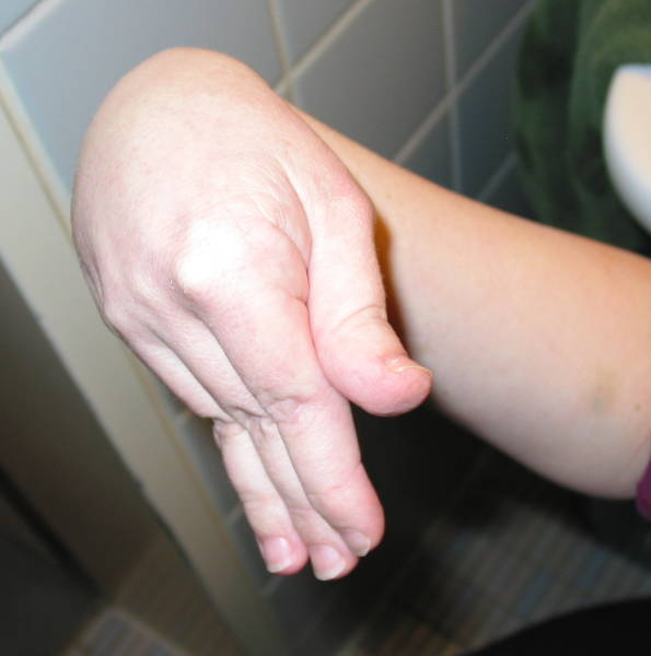 Ehlers-Danlos syndrome - DocCheck Pictures