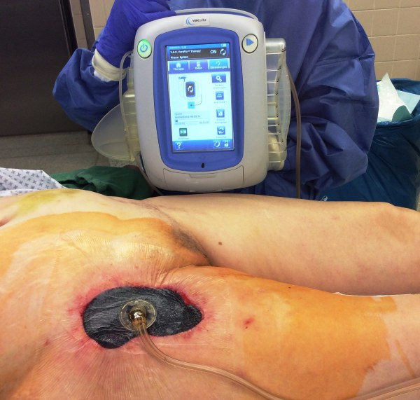 Wound infection (groin) with MRSA after Bypass surgery - wound treatment with VAC Veraflow