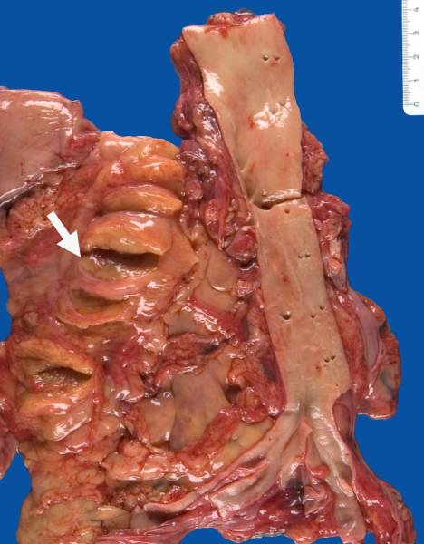 Fatty atrophy of the pancreas in cystic fibrosis