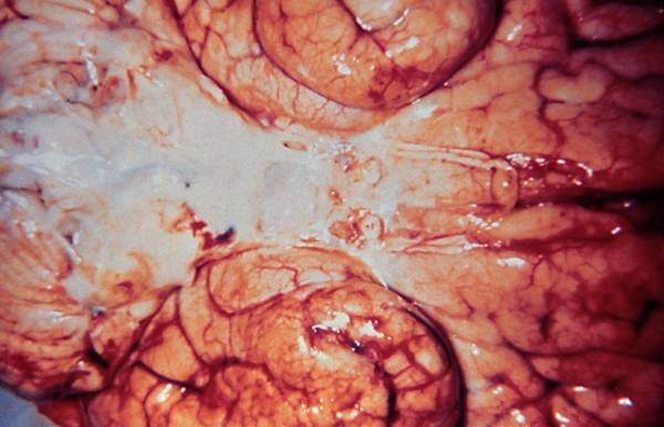 Brain preparation after meningitis (Haemophilus influenzae)
