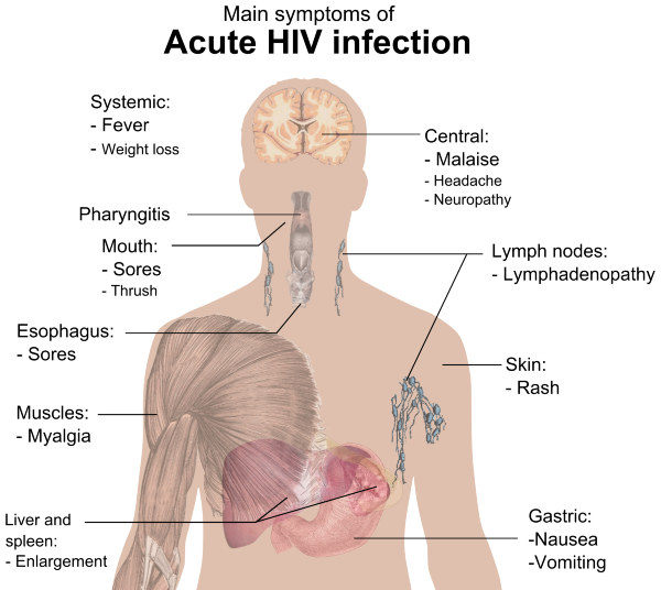 HIV Infektion