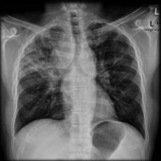 Sarcoidosis, Chest x-ray