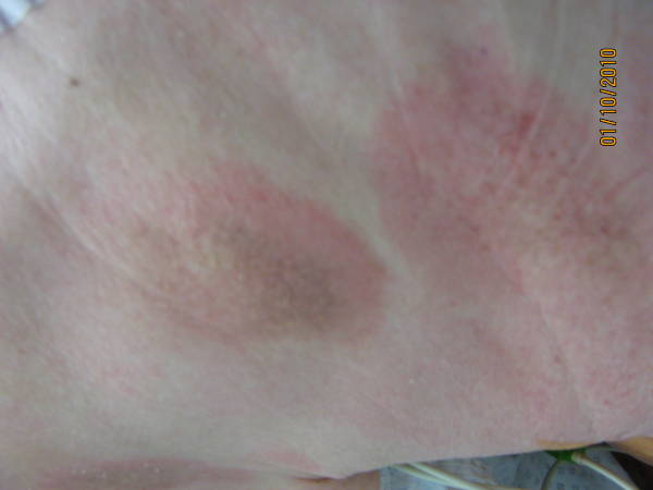 Mycosis fungoides; T-Zell Non-Hodgkin-Lymphom