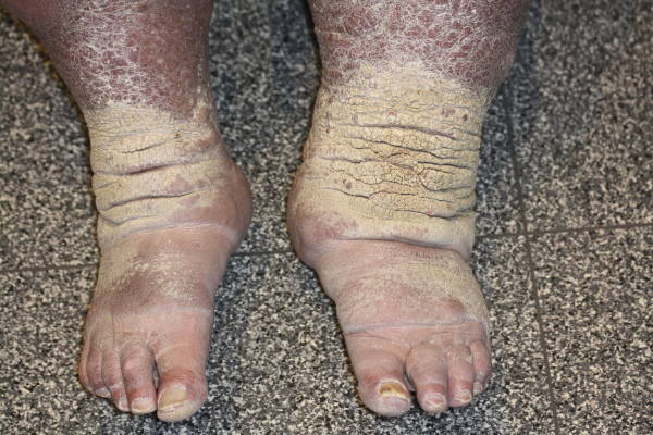 Skin of legs pictures cancer on