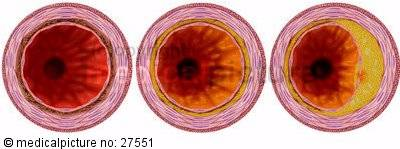 Arteriosclerosis in its stages of development