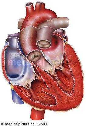 Section of the human heart - Heart failure