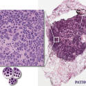 Small cell carcinoma, histology