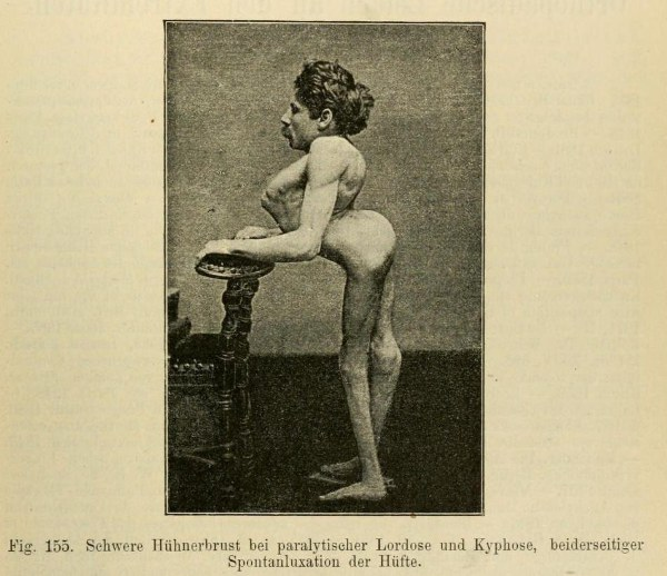 Severe pigeon chest with paralytic lordosis and kyphosis