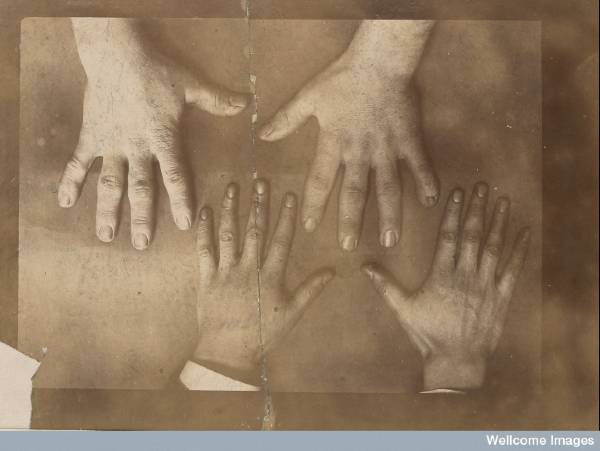 Acromegaly (2)