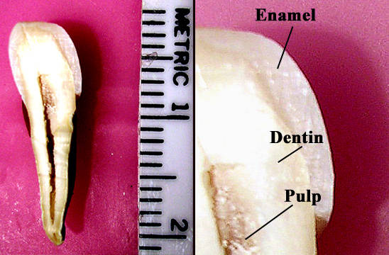 Labeled and full tooth