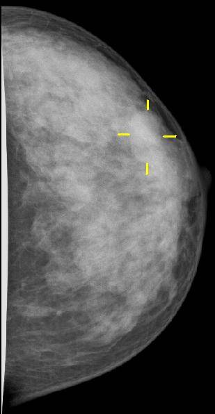 Mammography, breast cancer