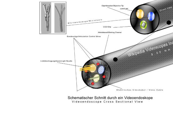 Video endoscope - cross section