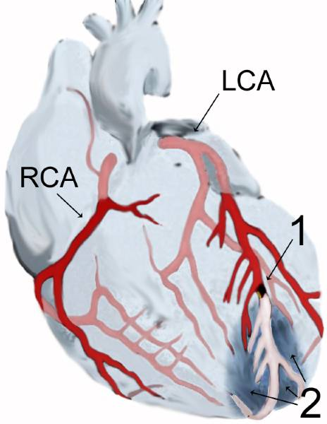 Myocardial infarction (diagram)