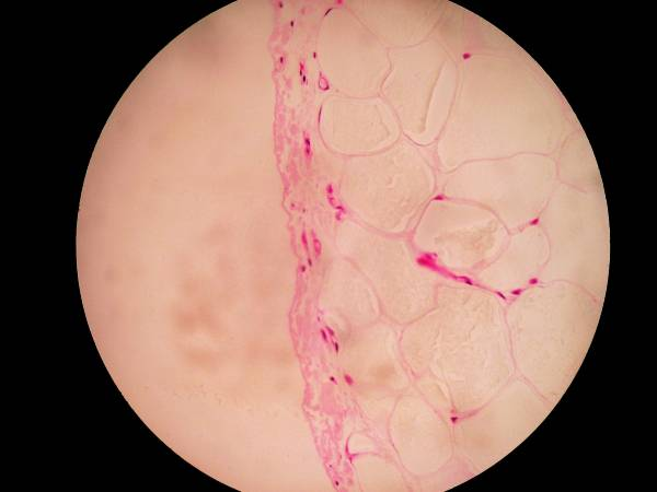 Colon des Schafes - Tela subserosa   Epithelium serosae