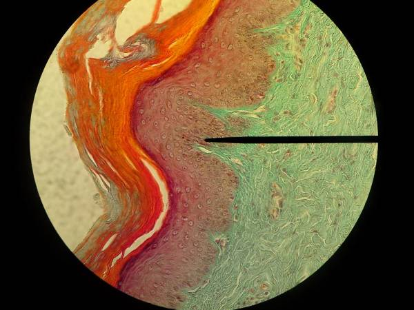 Cornificated squamous epithelium- ball of the foot from cat