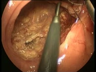 Transanal endoscopic Microsurgery (TEM), Part 01