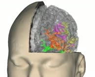 Dorsal and Ventral Language Streams in the Brain