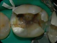 Dentalfotografie Fortbildung Teil 1