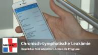 Chronisch-lymphatische Leukämie - Handliches Tool erleichtert Ärzten die Prognose
