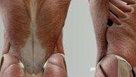 Musculi intertransversarii