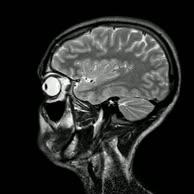 MRT Schädel in Sagittalebene, T₂‐gewichtet