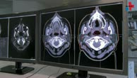 Strahlentherapie individuell planen