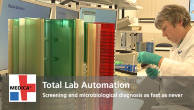 Total Lab Automation - Screening and microbiological diagnosis as fast as never