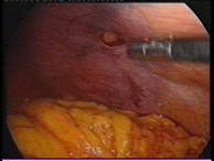 Laparoscopy - Diagnostic possibilities
