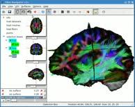 Diffusion MRI Brain Fibre Tractography - Fibernavigator