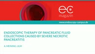 Endoscopic therapy of pancreatic fluid collections