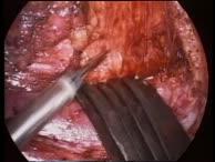 Laparoskopisch assistierte radikale vaginale Hysterektomie (LAVRH) Typ III-IV
